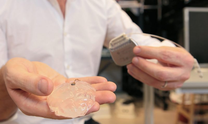 mono-implante-cerebral