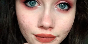 La belleza es más que un rostro, selfies con acné, Luchar contra el acné