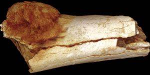 La evidencia fósil revela que el cáncer en los seres humanos se remonta a 1,7 millones de años